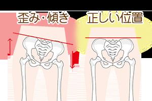 骨盤の傾きイラスト