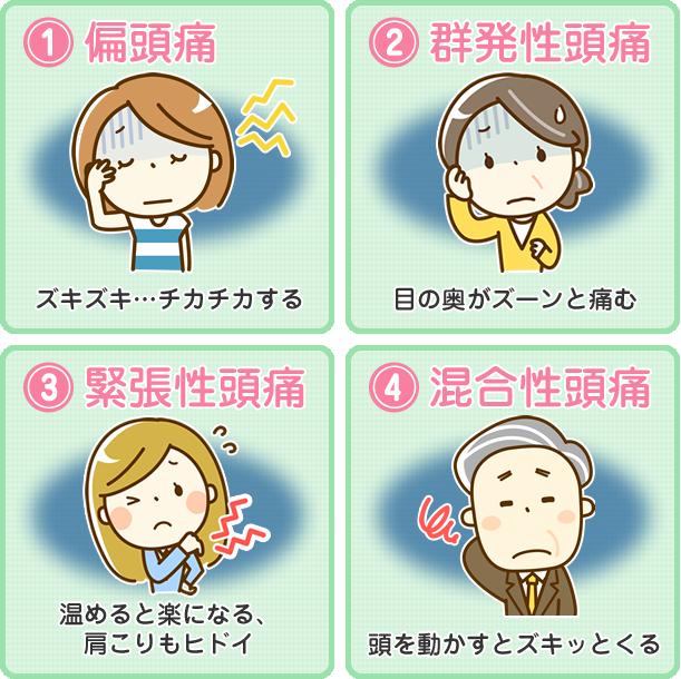 頭痛の種類のイラスト