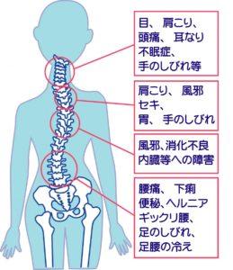 肩の歪みで起こる肩こりや腰痛のイラスト