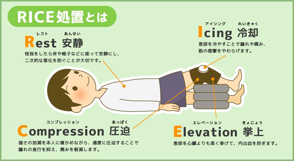 捻挫などのRICE処置についてのイラスト