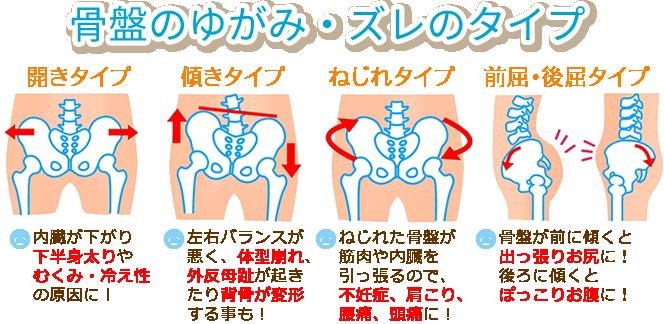 骨盤のゆがみ・ズレのタイプを説明したイラスト