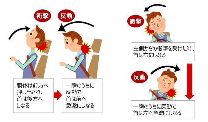 交通事故むちうち症の原因のイラスト