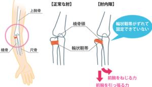 肘内障の原因を説明したイラスト