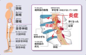 脊柱管狭窄を説明したイラスト